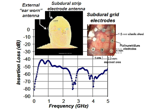 Insertion loss in a finite-difference time-domain (FDTD) human head modelbetween a subdural grid antenna and an external ear-worn antenna.(Source: 'Low Power Microsystems for Brain Computer Interfaces'5)